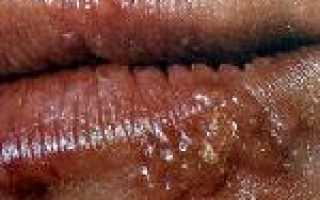 Герпес – причины, симптомы, диагностика, лечение