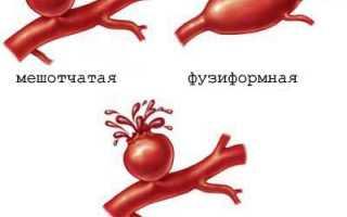 Аневризма – причины, симптомы, диагностика, лечение