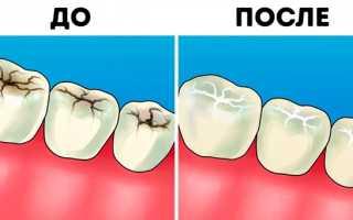 Популярные стоматологические процедуры: стоит ли делать?