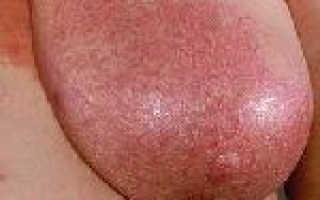 Мастит – причины, симптомы, диагностика, лечение