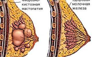 Мастопатия – причины, симптомы, диагностика, лечение