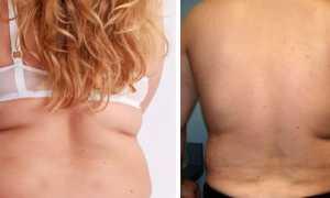 Убрать жир со спины под бюстиком
