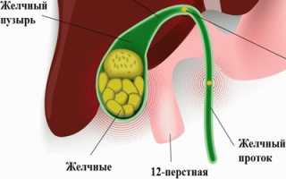 Желчный пузырь симптомы заболевания диета