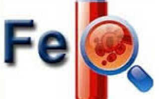 Анемия – причины, симптомы, диагностика, лечение