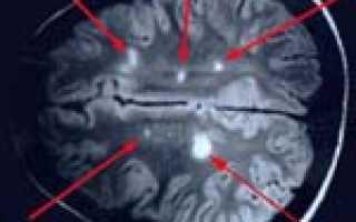 Склероз – причины, симптомы, диагностика, лечение