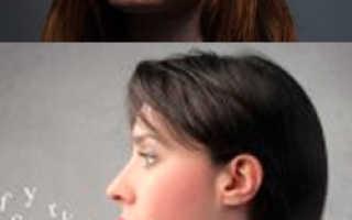 Заикание – причины, симптомы, диагностика, лечение