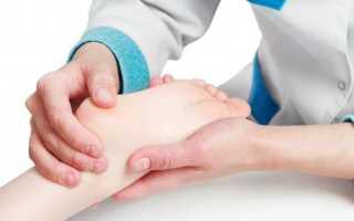 Вальгусная деформация стопы у детей – причины и способы лечения